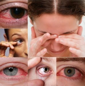 Лечение синдрома сухого глаза